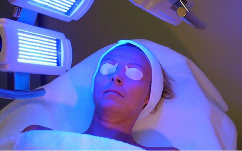 fototerapia-psoriasis