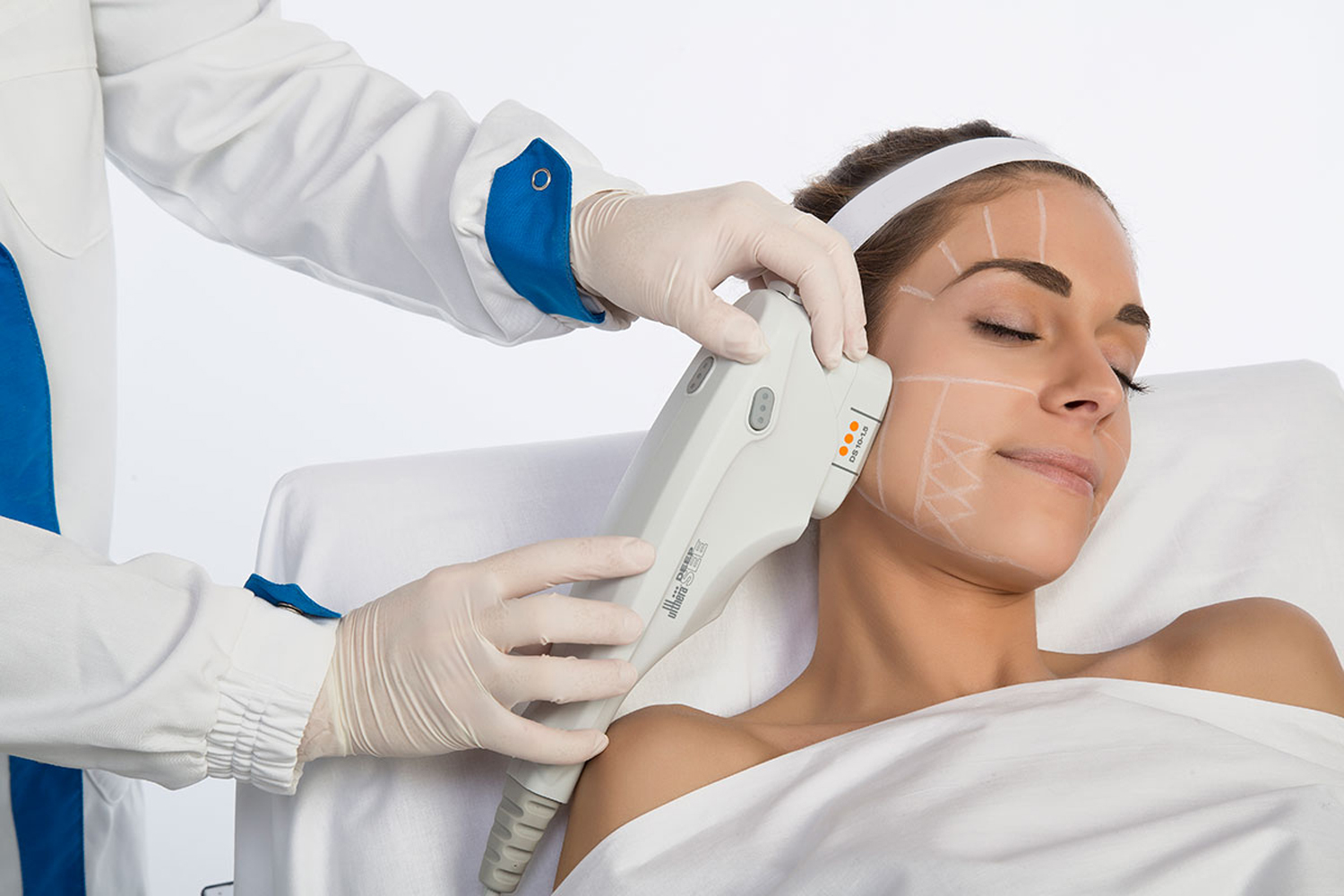 ultherapy-trat
