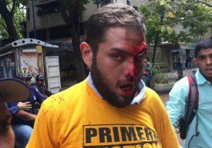 El diputado opositor venezolano Juan Requesens cumple dos años preso