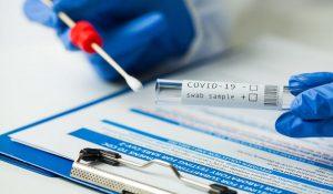 Confirman cuatro casos de COVID-19 en San Diego al menos 17 días después de realizar las pruebas PCR
