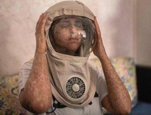 ¡Insólito! La mujer alérgica al sol que vive de noche y duerme de día
